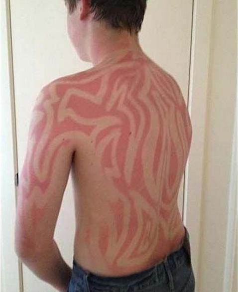 4 - 21 Insane Sunburns That Will Make You Fear the Sun