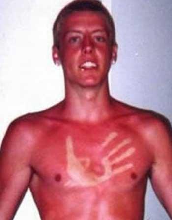 20 - 21 Insane Sunburns That Will Make You Fear the Sun