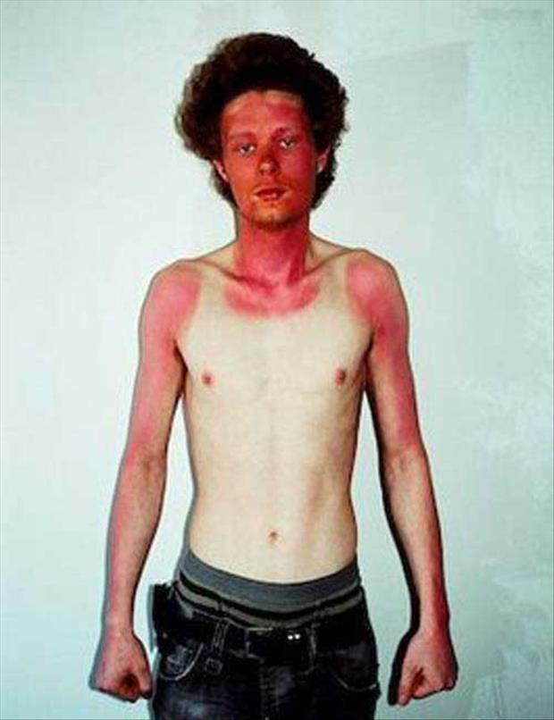 14 - 21 Insane Sunburns That Will Make You Fear the Sun
