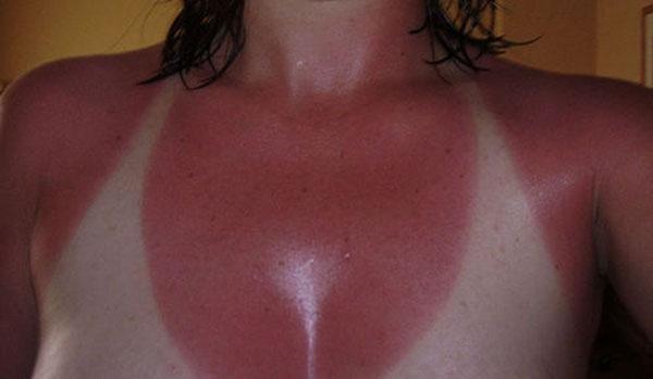 8 - 21 Insane Sunburns That Will Make You Fear the Sun