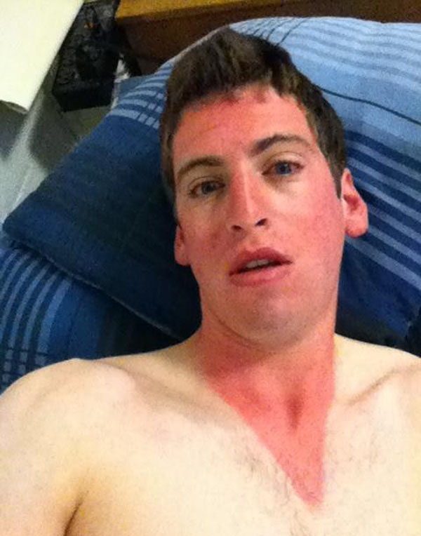 11 - 21 Insane Sunburns That Will Make You Fear the Sun