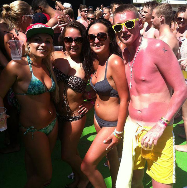 5 - 21 Insane Sunburns That Will Make You Fear the Sun