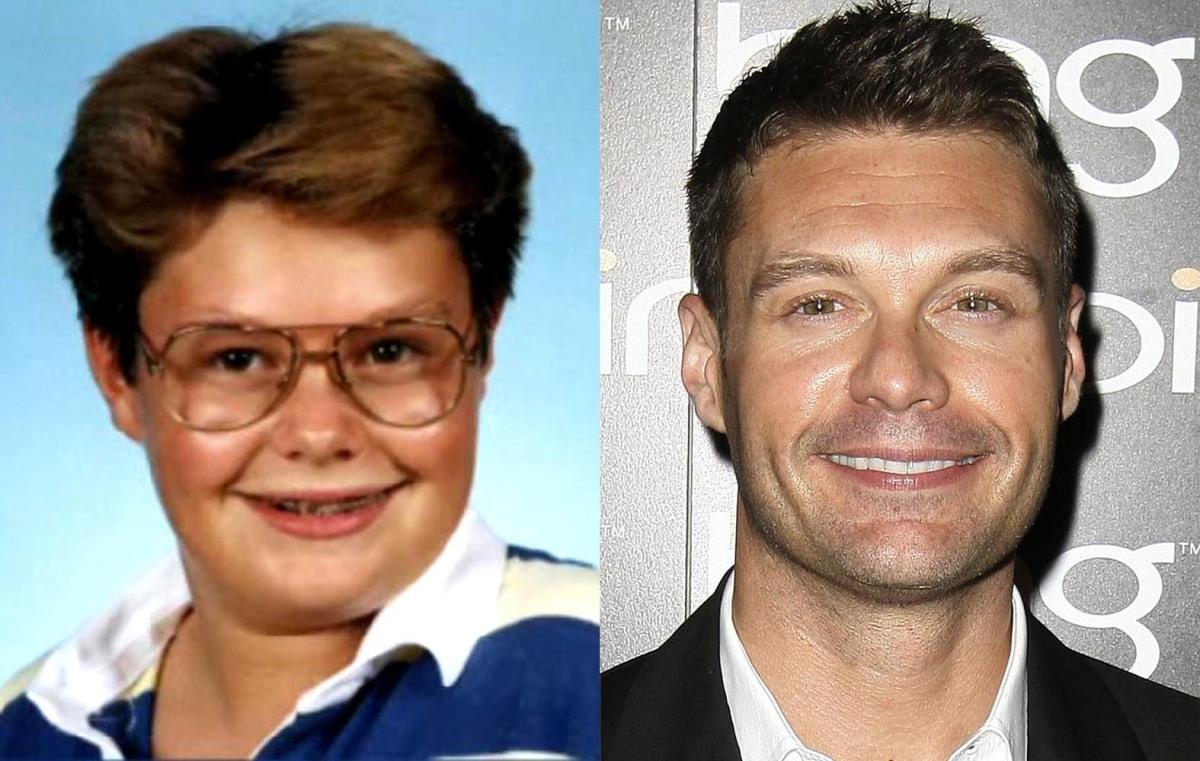 Celebrity nose mouth gap