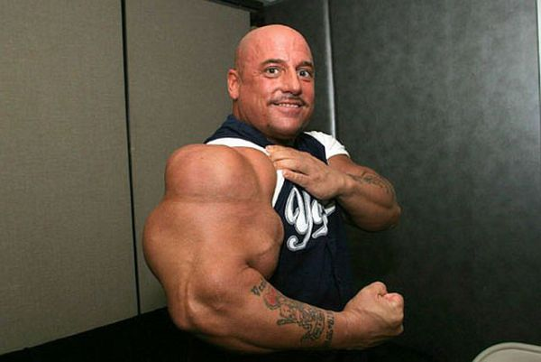 Another Synthol Victim - Gallery | eBaum's World