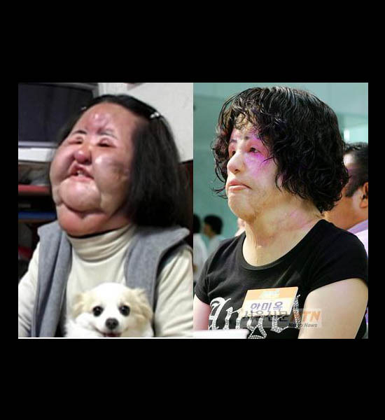 plastic surgery pictures that will scare you