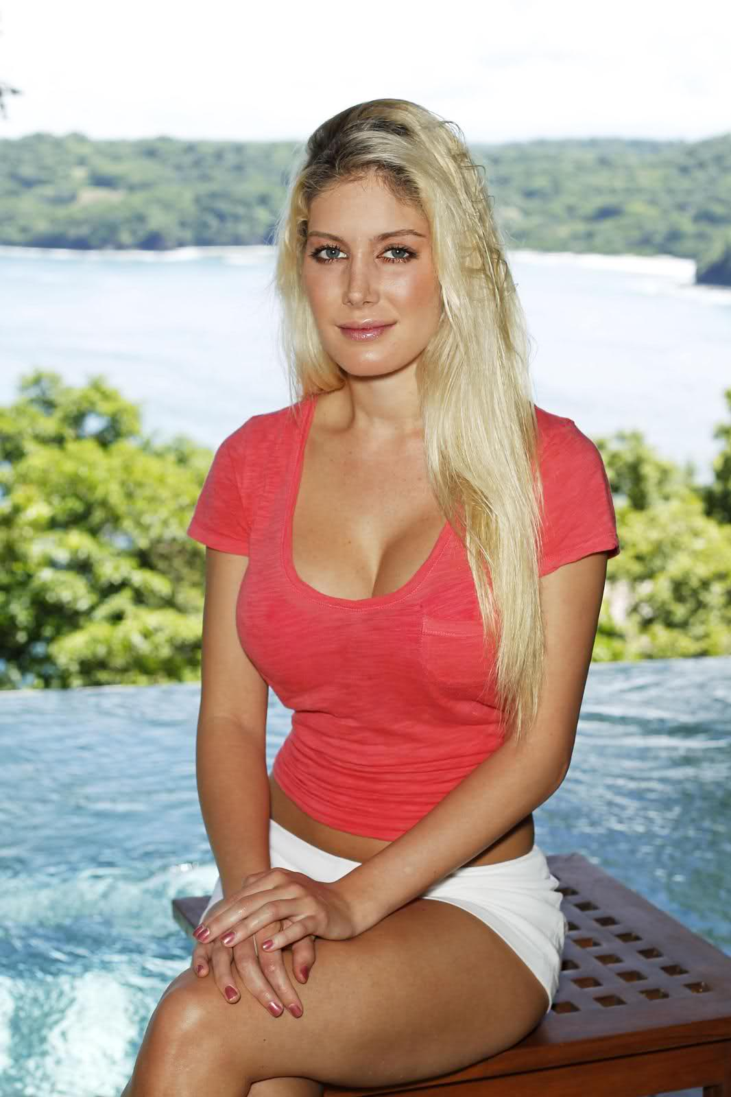 Heidi Montag Is One Plastic Surgery Chick Gallery