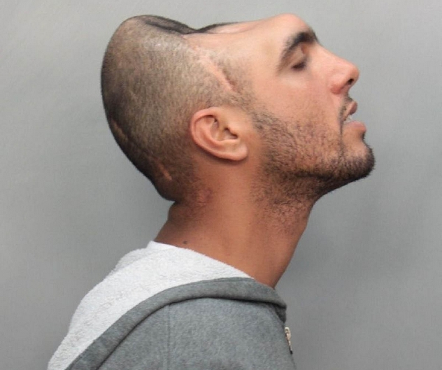 7 - Carlos Rodriguez, man with a half head.