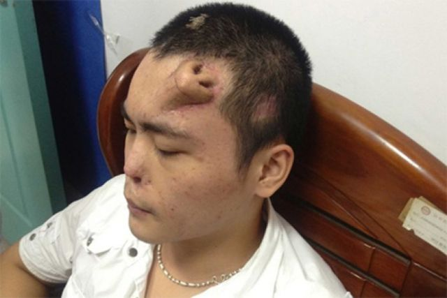 8 - Xiaolian from China suffered a nasal injury in a car accident and doctors replaced his nose.