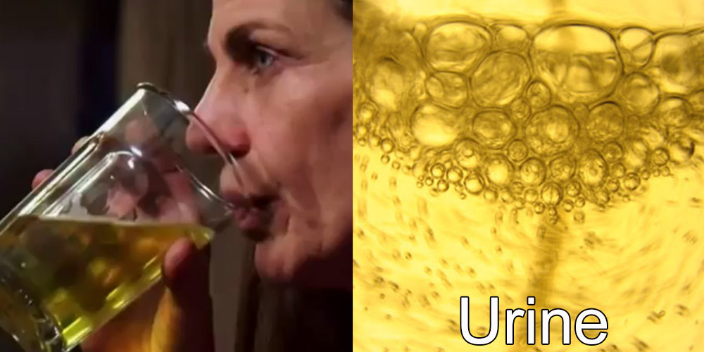 2 - Addicted to Drinking Urine: Carrie is a 53-year-old woman who's suffering from cancer. Instaed of trying chemotherapy, Carrie is trying something completely different, drinking her own urine.