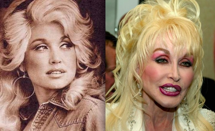 22 Celebrities Before Amp After Plastic Surgery Gallery
