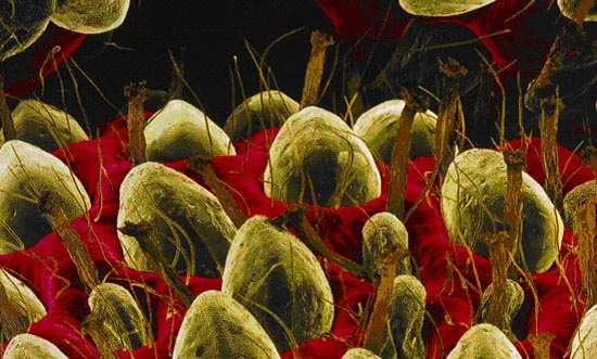 37 Ordinary Things Under A Microscope Gallery Ebaum S