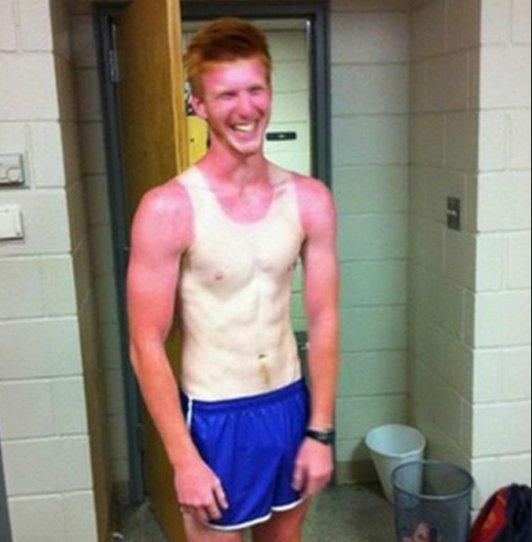 2 - 21 Insane Sunburns That Will Make You Fear the Sun