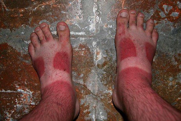 13 - 21 Insane Sunburns That Will Make You Fear the Sun