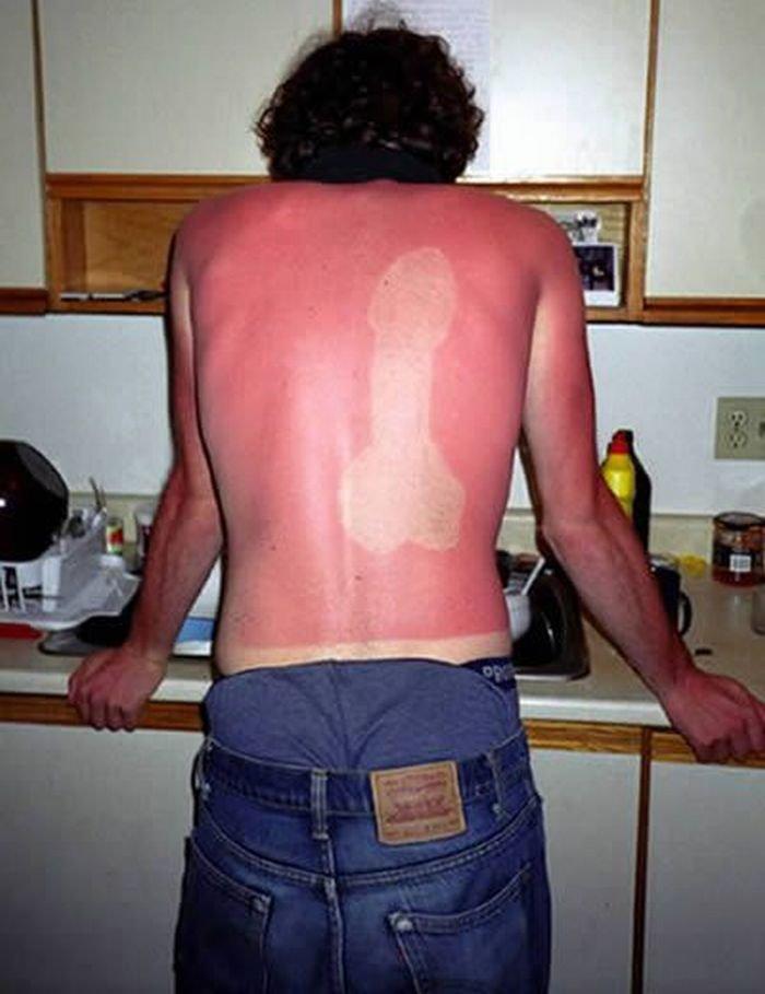 17 - 21 Insane Sunburns That Will Make You Fear the Sun