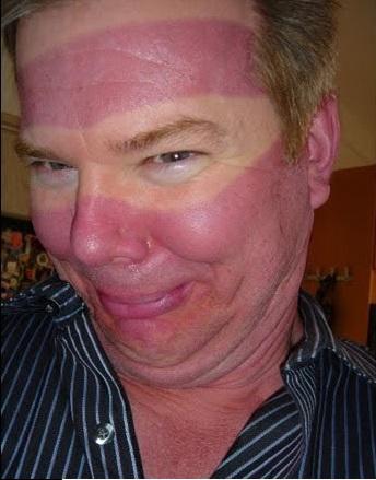 9 - 21 Insane Sunburns That Will Make You Fear the Sun
