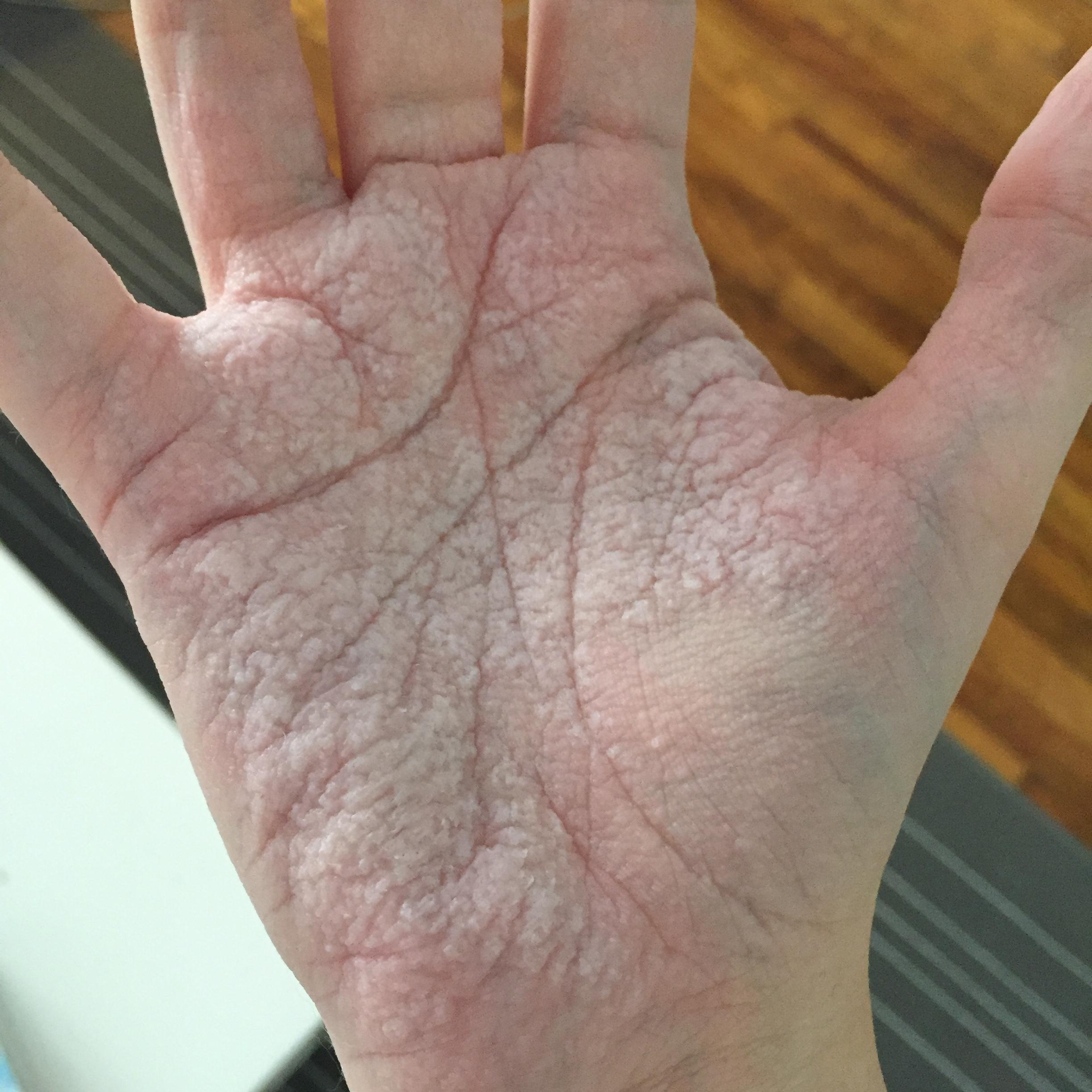 22 - This man has a water sensitivity. This is his hand after a 15-minute shower.