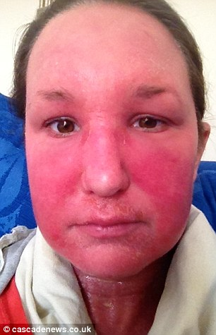 steroid cream allergic reaction