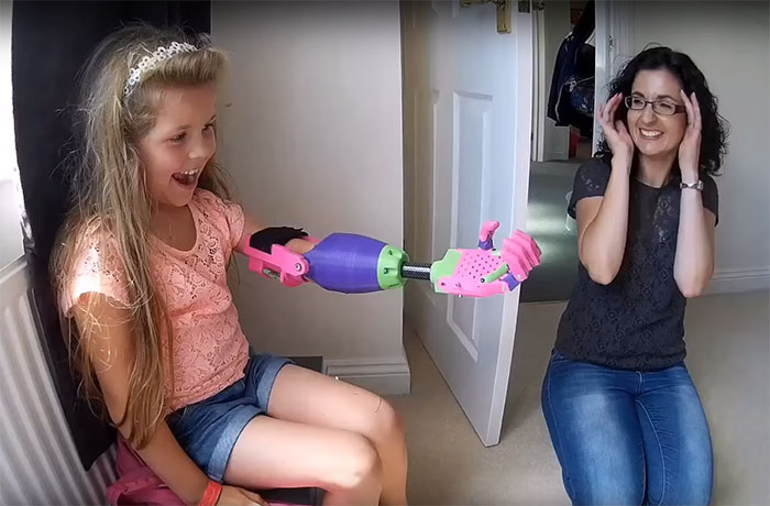 31 - 3D printed prosthetic arm designed by Stephen Davies for this 8-year-old girl