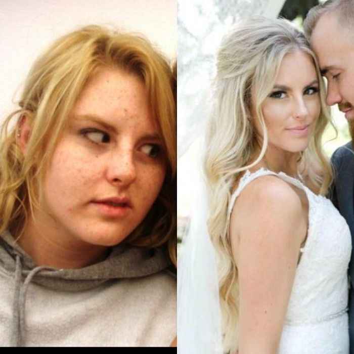 7 - 25 People That Went Through Amazing Transformations After Puberty