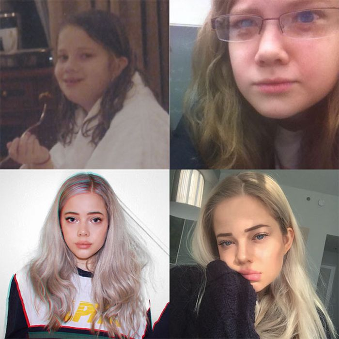 11 - 25 People That Went Through Amazing Transformations After Puberty