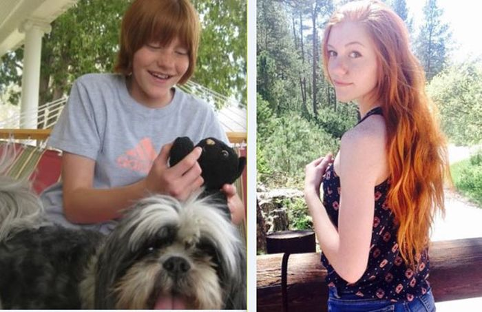20 - 25 People That Went Through Amazing Transformations After Puberty