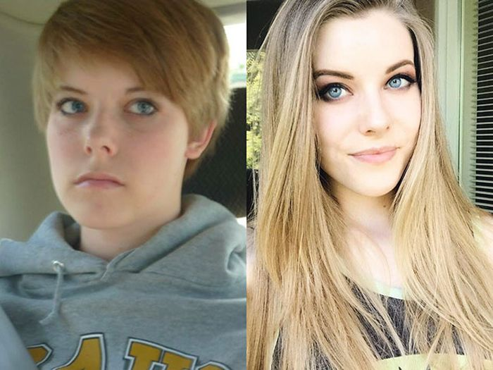 23 - 25 People That Went Through Amazing Transformations After Puberty