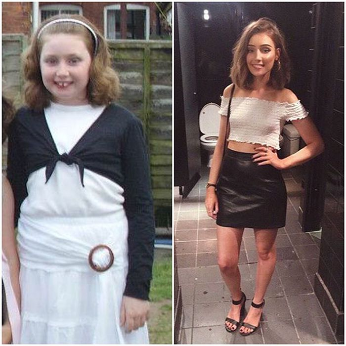 25 - 25 People That Went Through Amazing Transformations After Puberty
