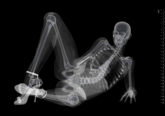 X ray cock