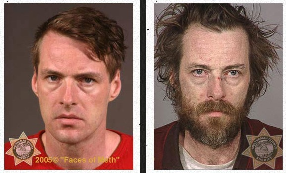 THE DEADLY EFFECTS OF METH