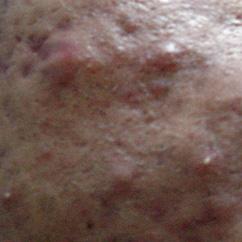 Zits, Acne, Pimples GROSS! - Gross Gallery   eBaum's World