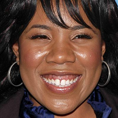 15 Celebs With Really Bad Teeth (PHOTOS) - Wetpaint