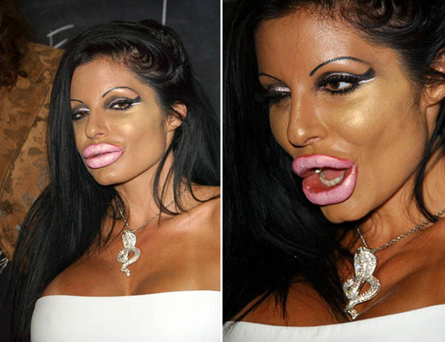 4 - 17 Pics of Plastic Surgery gone wrong
