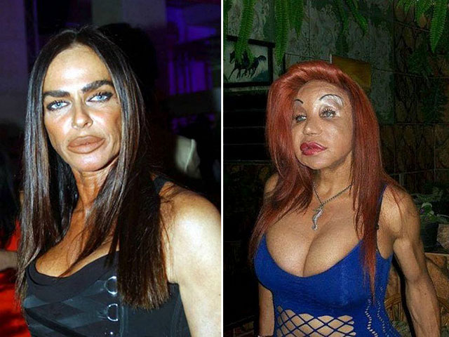 7 - 17 Pics of Plastic Surgery gone wrong