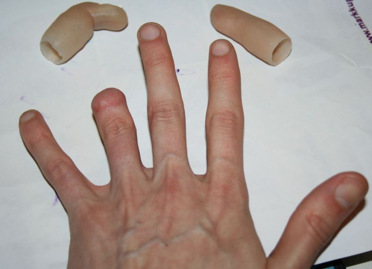 Prosthetic Finger Attachments & How They Work