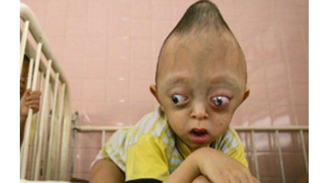 People with facial deformities