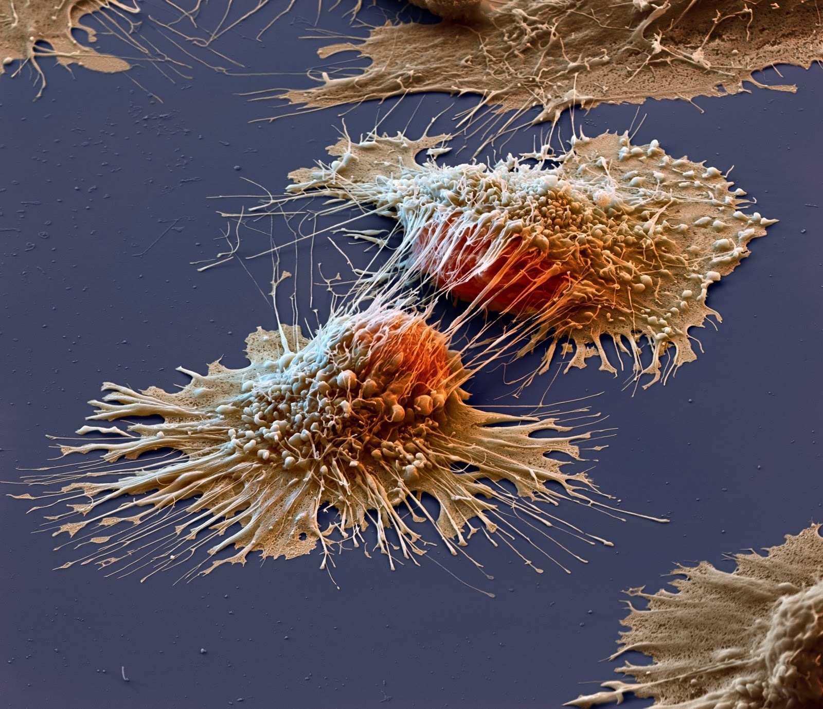 4 -  The disturbing reality of what cancer cells really look like up close.