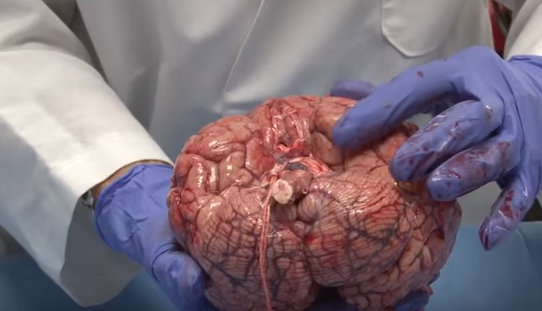 18 - Anatomy Professor shows how delicate the human brain actually is