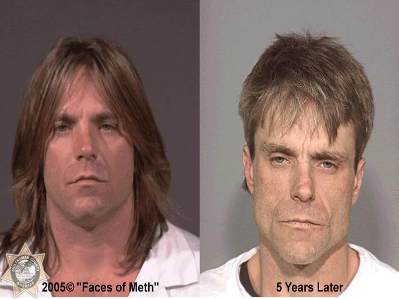 Methamphetamine Before And After Celebrities