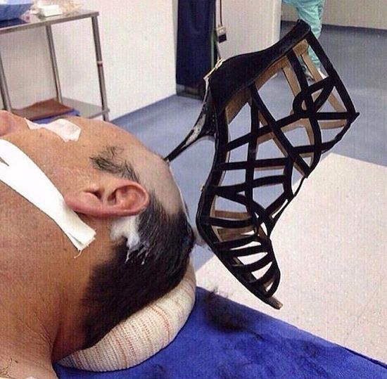 10 - Man with woman's shoe stuck in his head