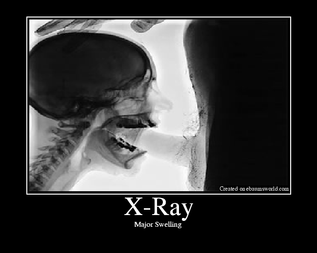 blowjob throat Xray deep
