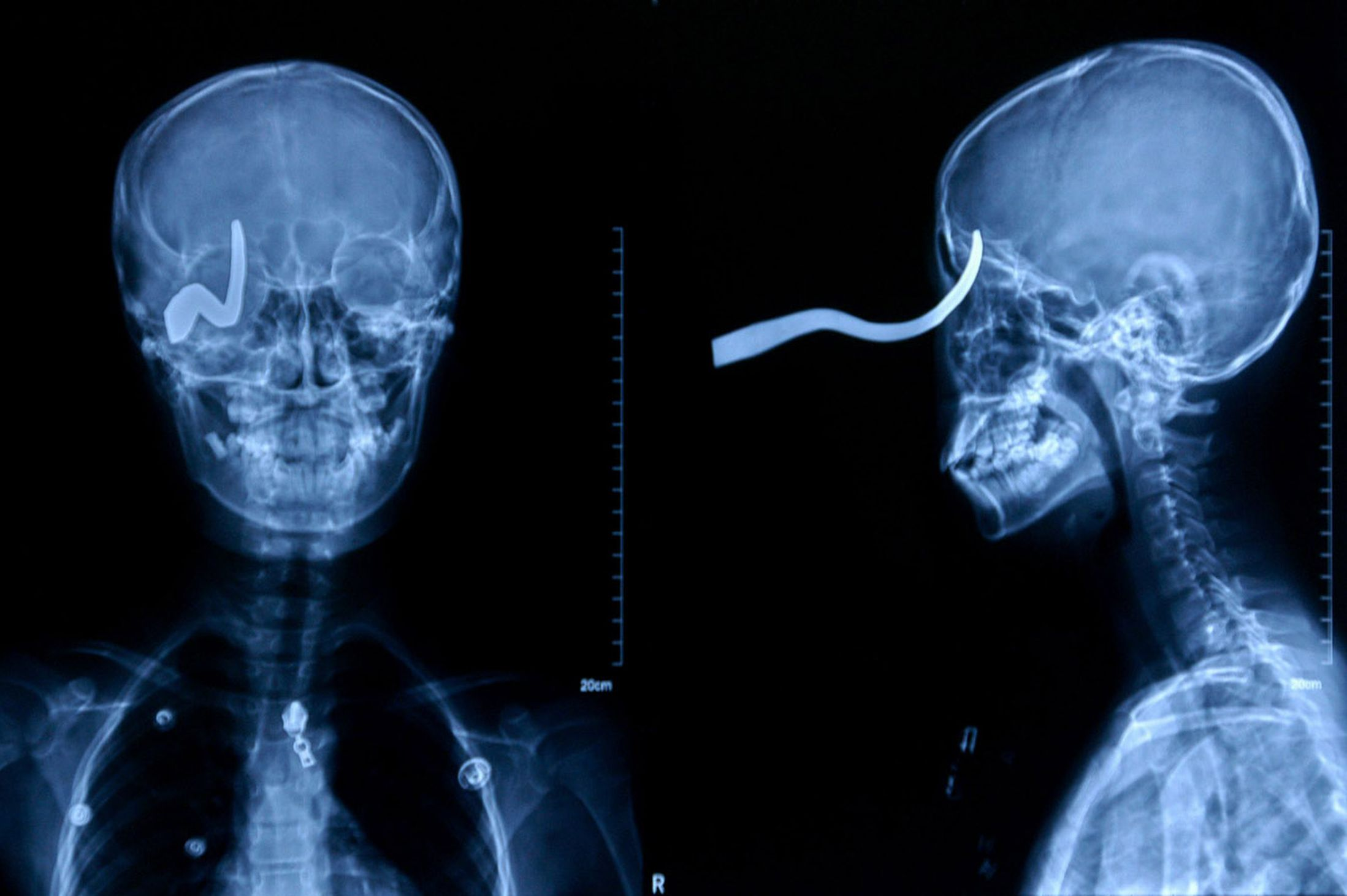 Crazy X Ray Pictures