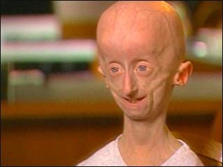 Progeria gallery