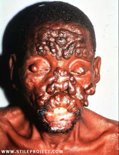 Photos of Facial Deformities http://www.ebaumsworld.com/pictures/view/942262/