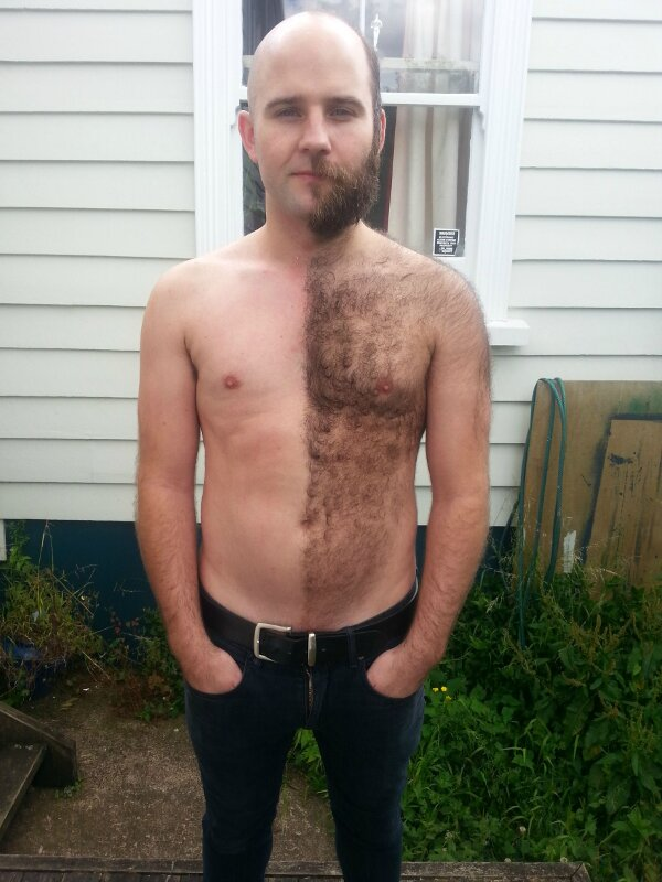 24 - Hairy man that shaved half side of his body.