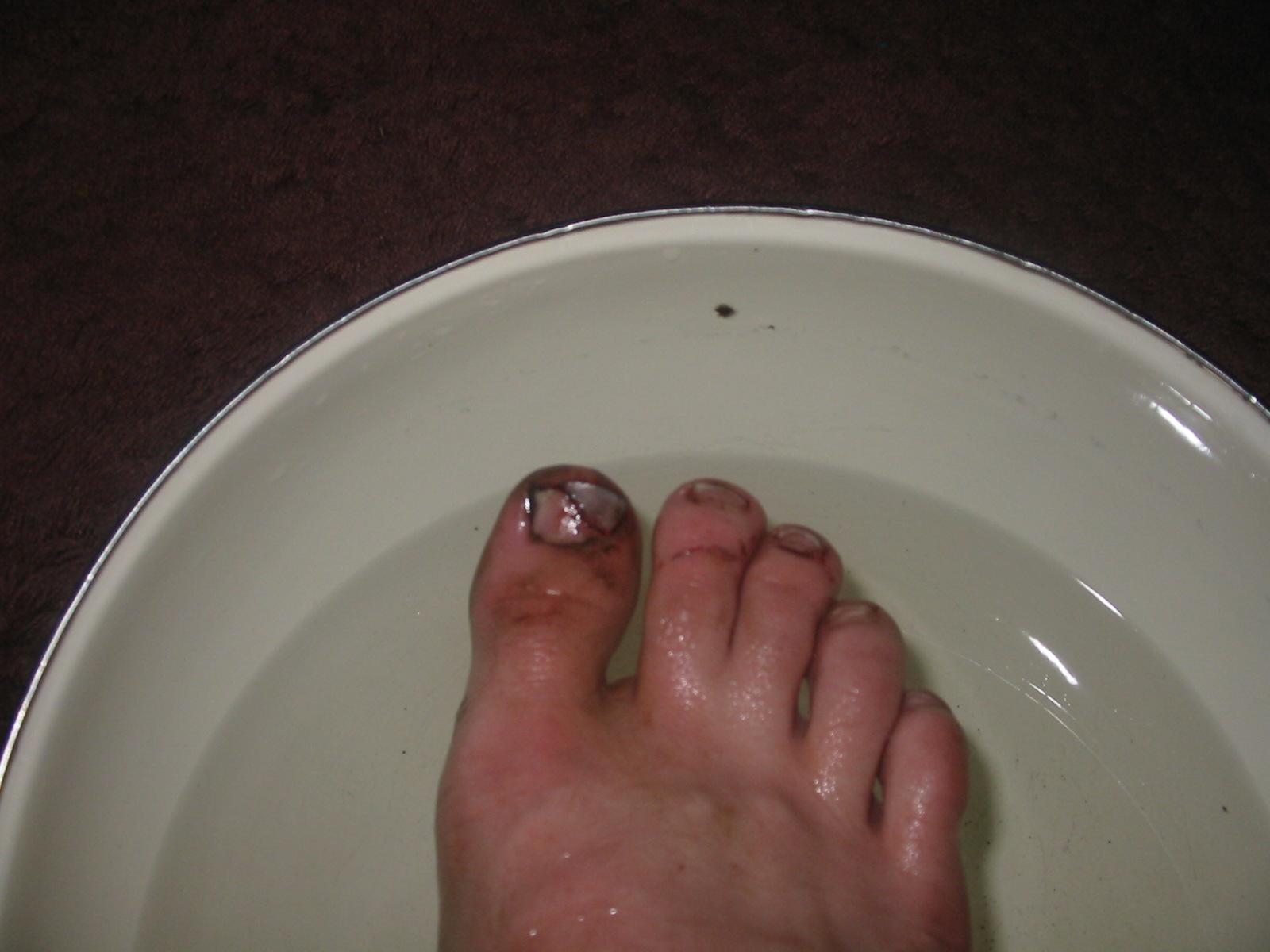 Disgusting Toenail Injury Part 2 - Picture | eBaum's World