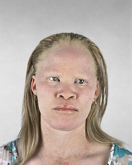 Black Albino Comedian Are Albino Black Folks