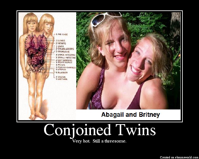 Hot Conjoined Twins Porn