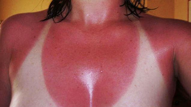 როგორ ვუშველოთ მზისგან დამწვარ კანს - რჩევები ზაფხულისთვის
