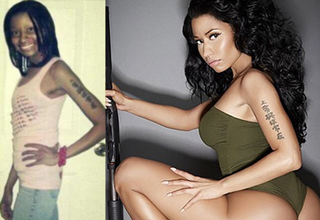 niki minaj before and after