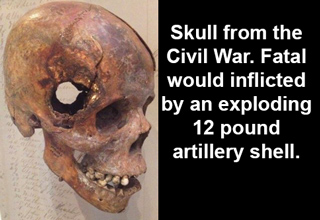 skull from the civil war. fatal would inflicted by an exploding 12 pound artillery shell
